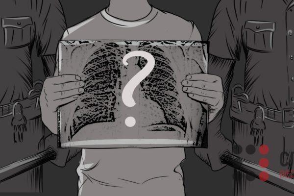 Умовно здорові: як лікують в українських тюрмах