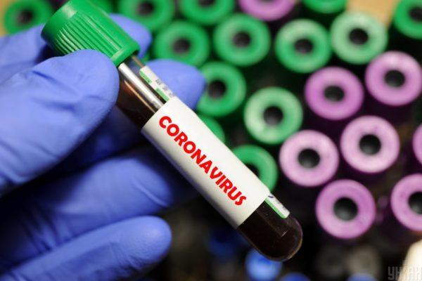 МОЗ у декілька разів перебільшує можливості лабораторій тестувати на коронавірус